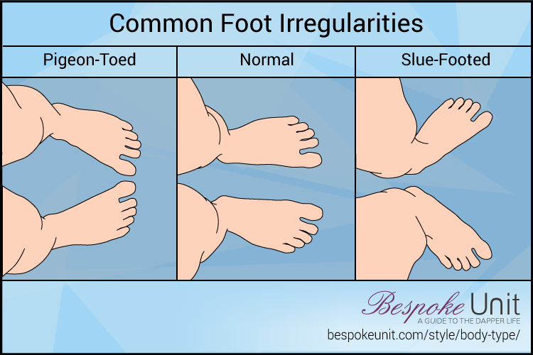 Common Foot Irregularities