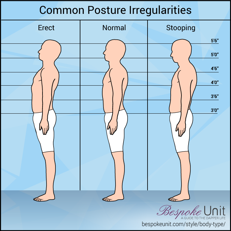 Common Posture Irregularities