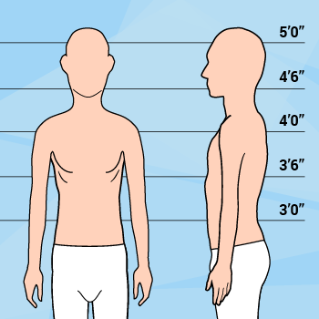 Graphic Of Short Thin Man Against Height Markers