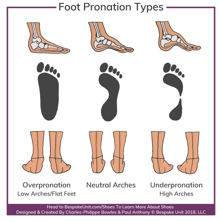 Different Types of Foot Arch Pronations
