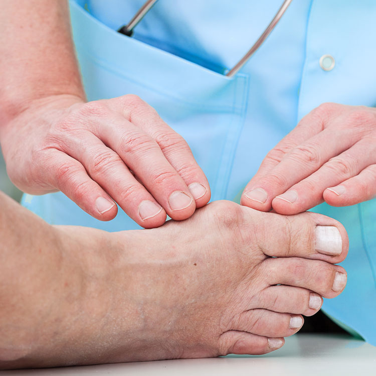Physician Checking Foot Bunion