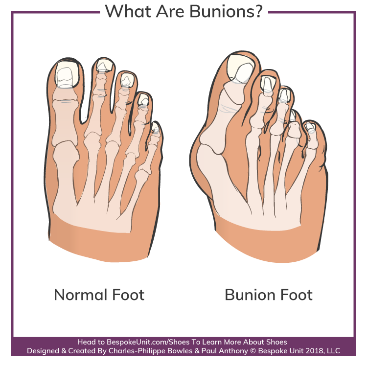 What Are Hallux Valgus Bunions